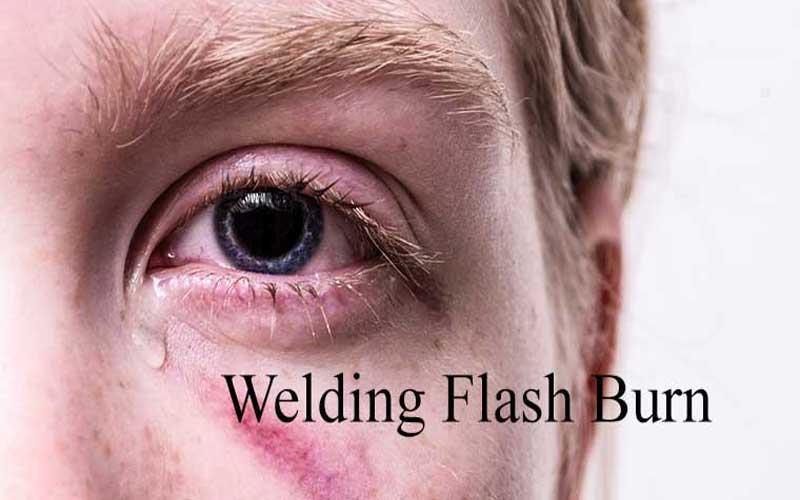 Photo of روش های درمان برق زدگی چشم جوشکاری